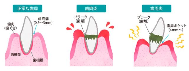 ▲歯周病には、歯ぐきが炎症を起こし腫れる「歯肉炎」と、歯肉炎の放置により症状が進行し、歯を支える骨が溶けた状態の「歯周炎」の2つの段階があります。