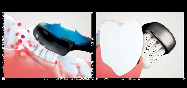 歯周病_4