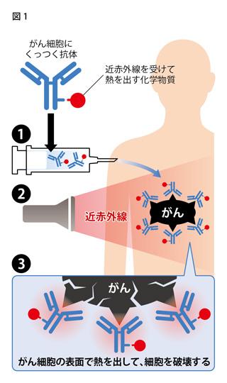 近赤外線を使った新しいがん治療法のイメージ