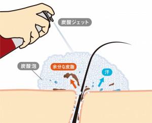 スカルプD モーニング炭酸ジェットスカルプシャンプー